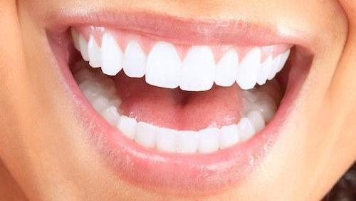 Woman with cosmetic dentistry in Booragoon WA