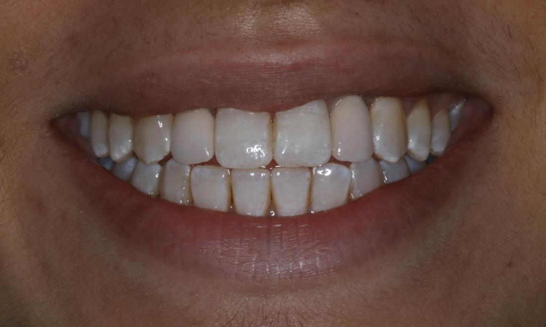 patient after dental implants booragoon