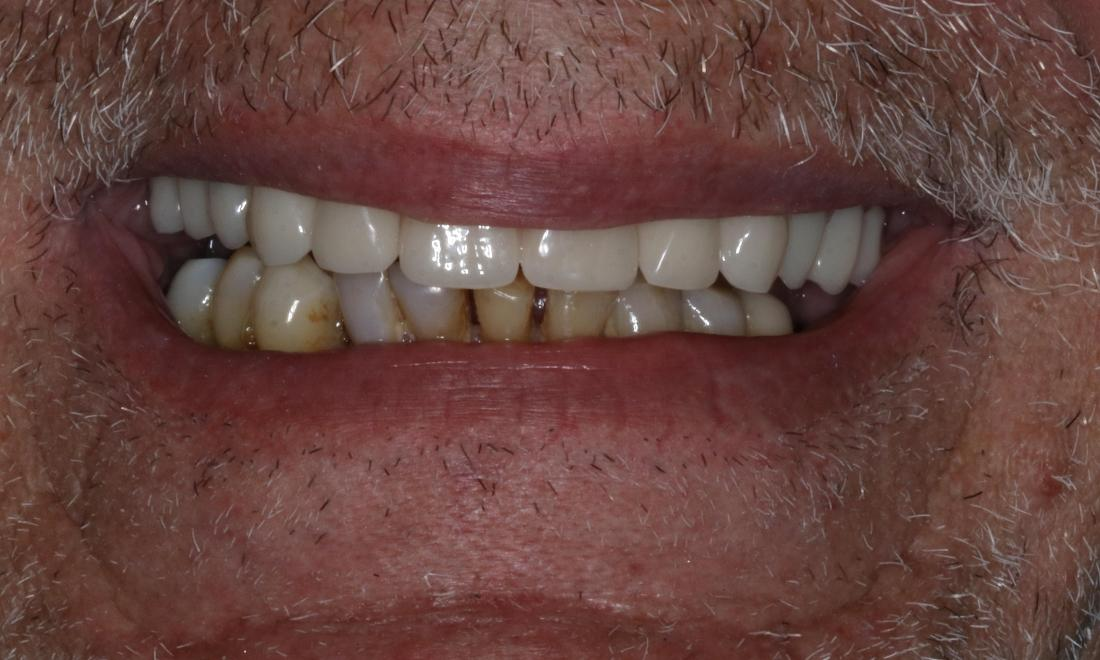 dental bridges in booragoon