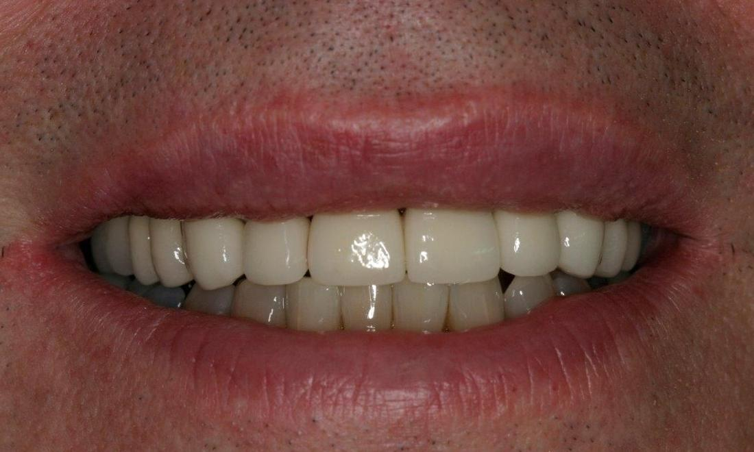 Patient with dental crowns | Booragoon WA