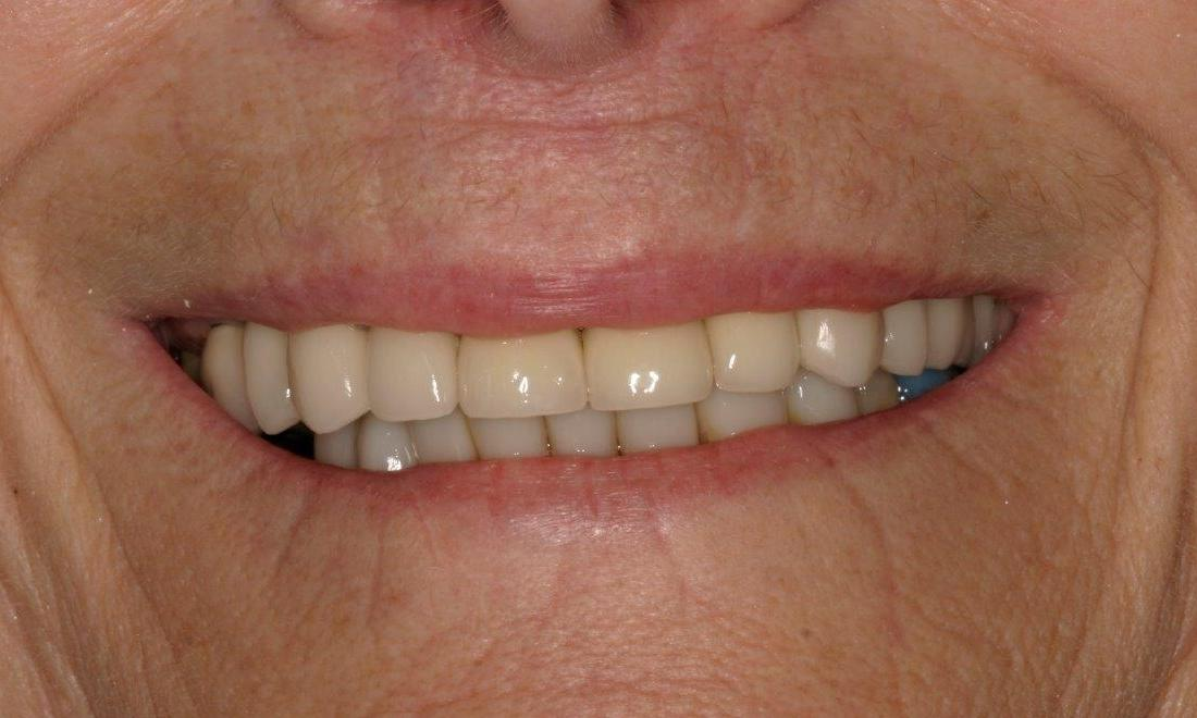 Patient After crowns and bridges | Mount Pleasant Dentist