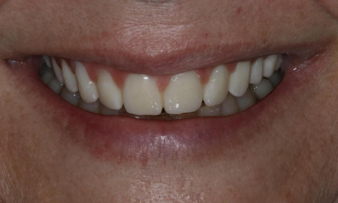 Dental Implants After Photo Booragoon