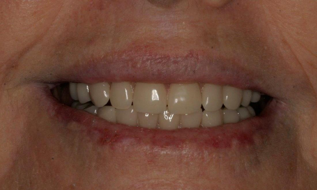 Dental Implants After | Mount Pleasant