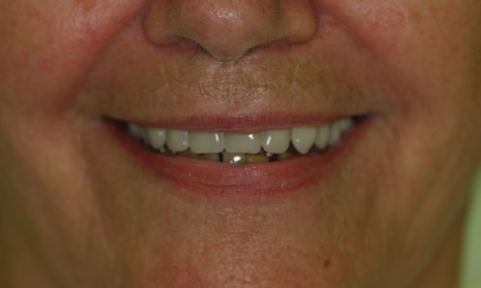 Dentures After Photo | Booragoon, WA