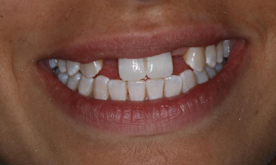Patient before dental implants booragoon