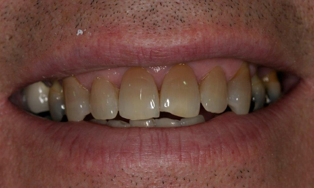 Patient before dental crowns | Booragoon WA