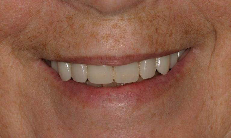 Full-Mouth-Reconstructions-with-Implants-in-Booragoon-WA-After-Image