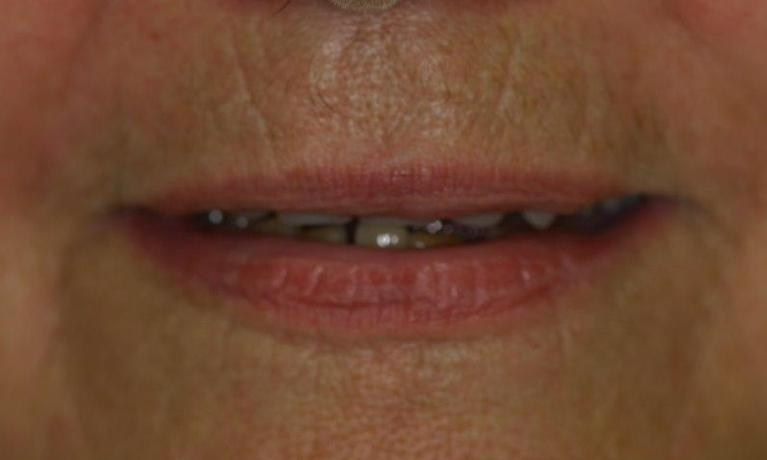 Full-Dentures-in-Booragoon-WA-Before-Image