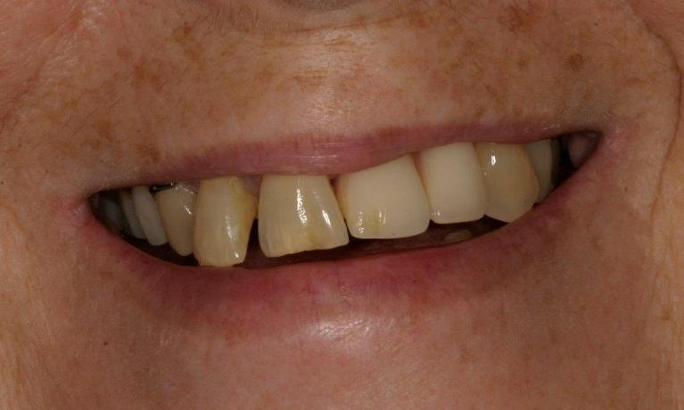 Full-Mouth-Reconstructions-with-Implants-in-Booragoon-WA-Before-Image